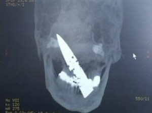 Knife in Chinese man's head.