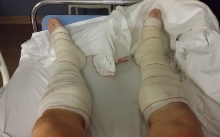 Chronic exertional compartment syndrome in martial-arts